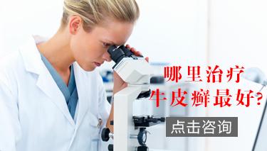 郑州银屑病研究所挂号